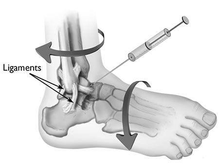 Ankle Injection Doctor in NYC, Ankle Pain Specialist