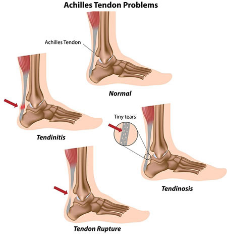 Ankle Injuries Treatment Doctor, Specialist · Pain Management Clinic in NYC