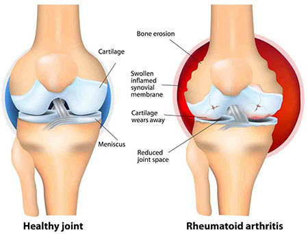 what does arthritic knee look like