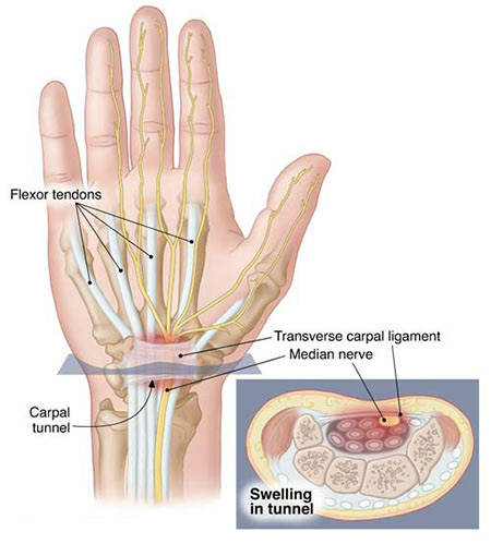 Carpal Tunnel Syndrome Treatment Doctor in NYC, Wrist Specialist