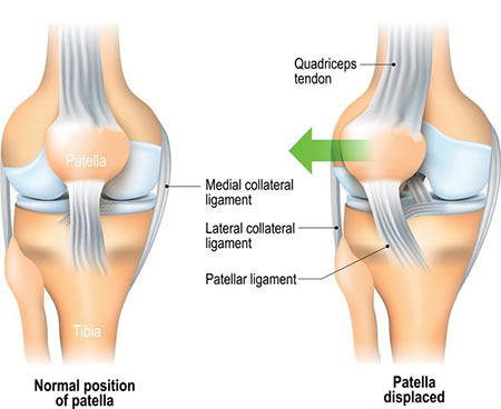 Chondromalacia Patella Treatment Doctor in NYC, Knee Specialist