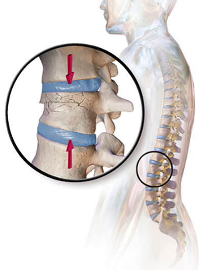 Compression Fracture Treatment Doctor in NYC, Spine Specialist