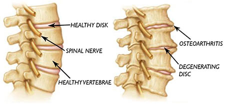 nyc degenerative disc disease in neck top rated treatment specialist