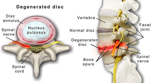 Degenerative Disc Disease Treatment Doctor in NYC, Top Back Pain Specialist