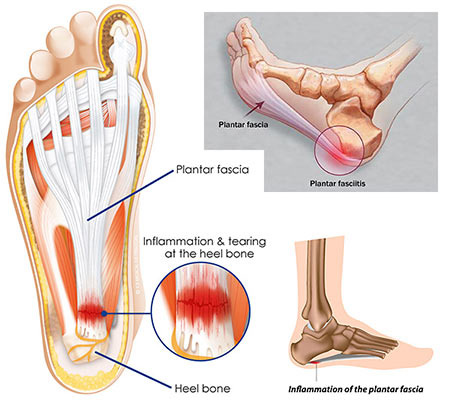NYC Foot Injections (cortisone, steroid) · Sports Injury Clinic