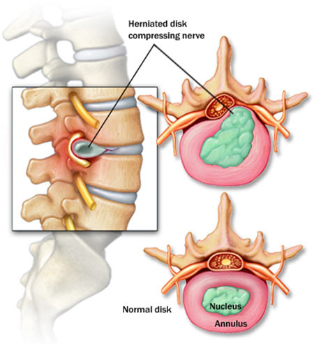 Image result for herniated disc