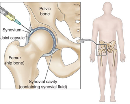 Steroid shot for pain in hip