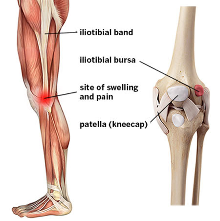 Iliotibial Band Syndrome Treatment Doctor in NYC, Knee Specialist
