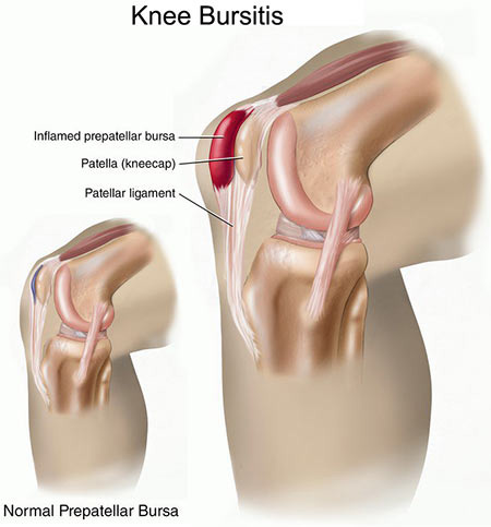 Bursitis in the Knee Treatment Doctor in NYC, Knee Specialist
