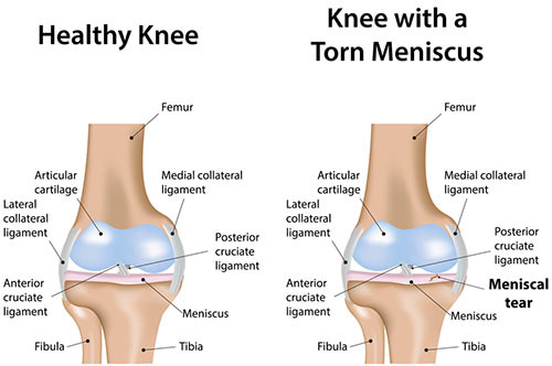 NYC Knee Injuries Treatment Doctor Specialist · Sports Pain Management Clinic