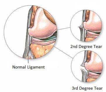 NYC Knee Ligament Tears Treatment Doctor & Knee Specialist · Sports Injury Clinic