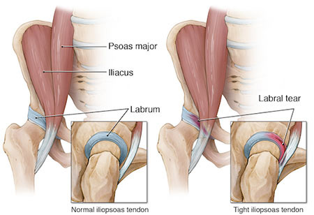 Labral-Tear-Treatment-Doctor-Specialist-NYC.jpg