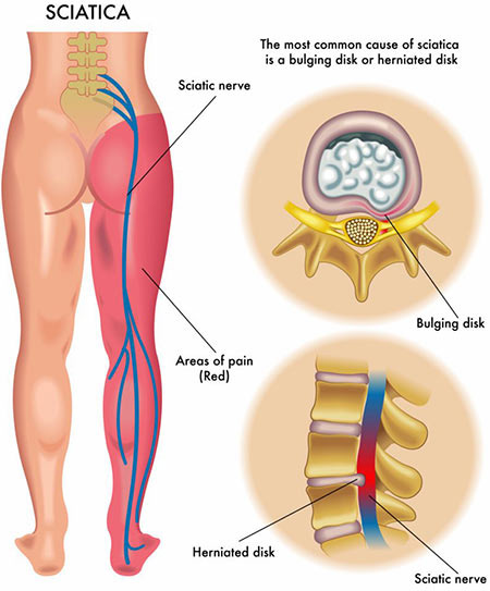 NYC Lower Back Pain Treatment Doctor Specialist · Sports Injury Clinic