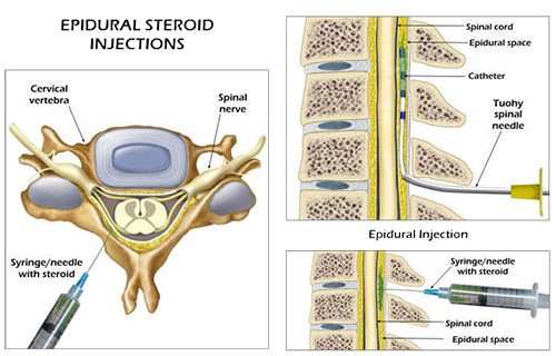 NYC Lumbar Epidural Steroid Injection · Top Rated Back Pain Specialist
