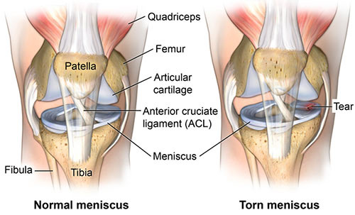 Meniscus Tear Treatment Doctor in NYC, Knee Specialist