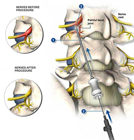 Nerve Block Injection Specialist in NYC · Sports Injury Clinic