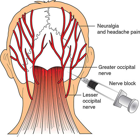 Nyc Occipital Nerve Block Doctor Neck Pain Specialist