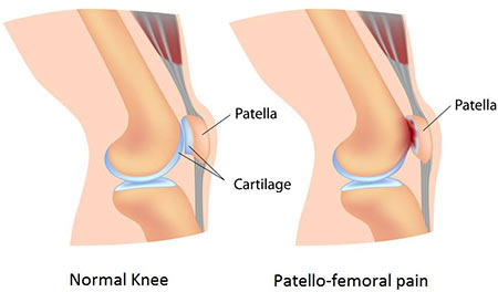 Patellofemoral Pain Syndrome Treatment in NYC, Knee Doctor Specialist