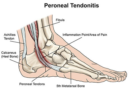 Peroneal Tendonitis Treatment in NYC, Doctor & Ankle Specialist · Sports Injury Clinic