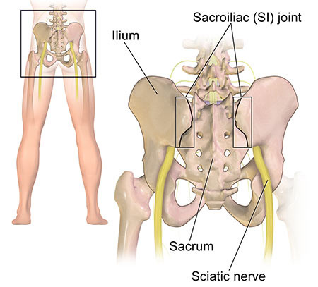 Sacroiliac Joint Dysfunction Treatment in NYC, Doctor & Specialist · Sports Pain Management Clinic
