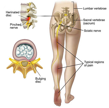 Sciatica Treatment Doctor in NYC, Top Back Pain Specialist