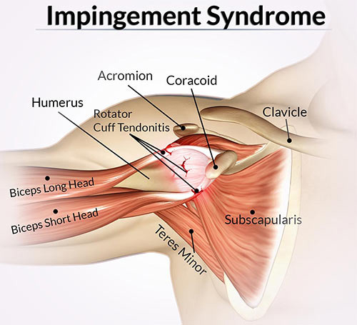 Shoulder Impingement Treatment Doctor in NYC, Shoulder Specialist