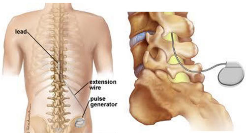 Spinal Cord Stimulation Therapy in NYC · Top Rated Back Pain Specialist