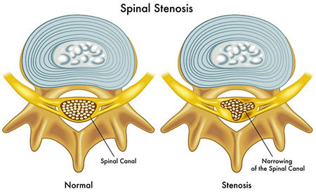 Spinal Stenosis Treatment Doctor in NYC, Spine Specialist