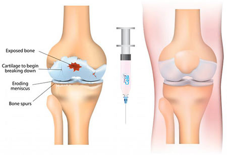 Stem Cell Therapy Injections | Knee, Hip Pain Specialist in NYC
