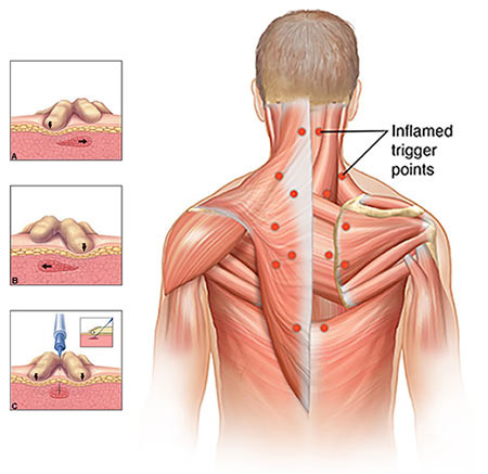 Trigger Point Injections Doctor in NYC, Top Back Pain Specialist