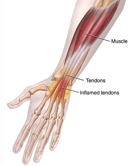 Wrist Tendonitis Treatment in Manhattan, NYC